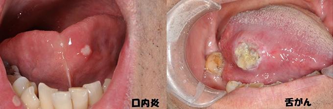 口腔癌 , 鹿児島大学大学院 顎顔面機能再建学講座 顎顔面疾患