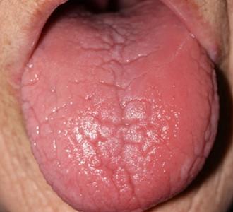 痛い 舌 が ヒリヒリ